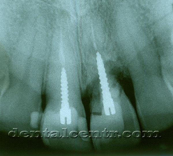 Перелом зуба на рентгенограмме