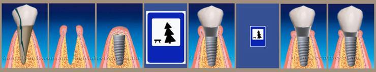 Схема в пиктограммах: немедленная, двухэтапная зубная имплантация. Пиктограмма, рисунок