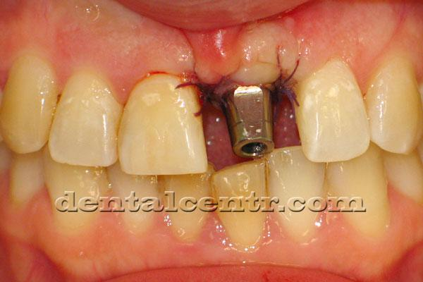 Установка зубного импланта и абатмента одновременно фото