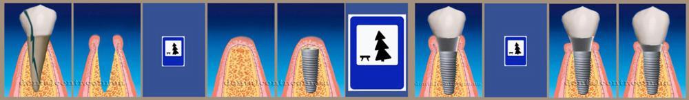 Схема в пиктограммах: отсроченная, двухэтапная зубная имплантация, пиктограммы, рисунок