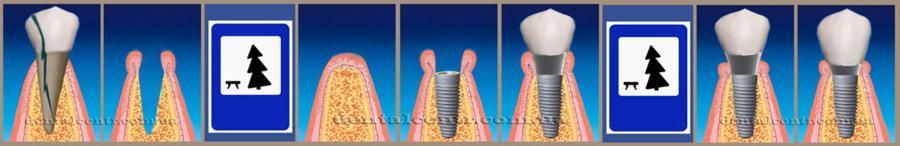 Схема в пиктограммах: отсроченная, одноэтапная зубная имплантация. Пиктограммы, рисунок