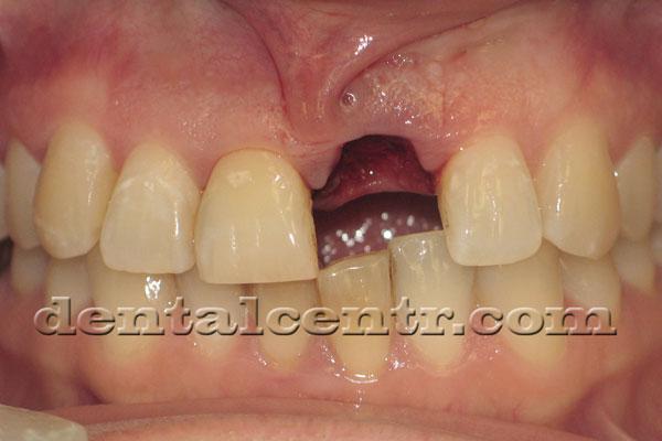 Удаление разрушенного зуба фото