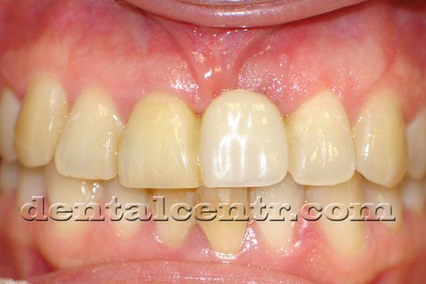 Изготовление временного зуба фото