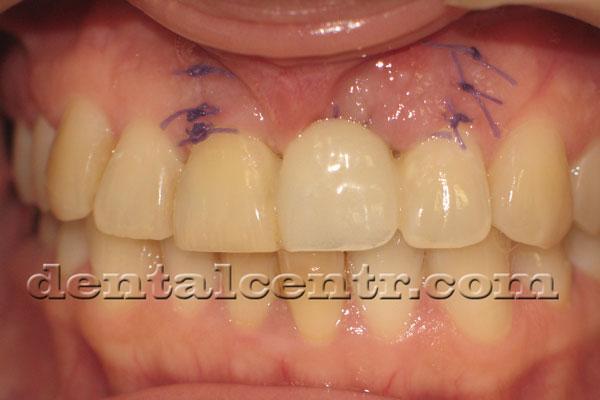 Фотография временного зуба установленного после проведения первыго этапа  имплантации