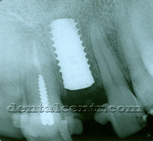 Рентгенограмма, зубной имплант фото