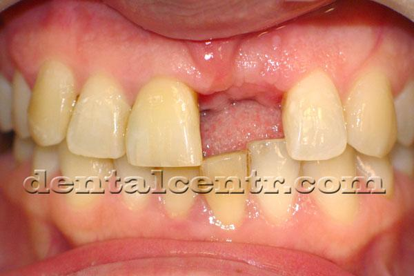 Удален временный зуб перед вторым этапом имплантации