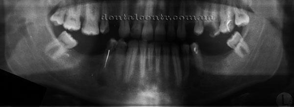 Рентгенограмма, подготовка к протезированию