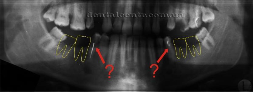 Рентгенограмма с нанесенными контурами недостающих зубов