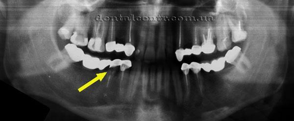 Рентгенограмма спустя много лет после имплантации
