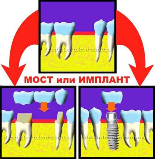 Выбор стоматология Харьков: мост или имплант