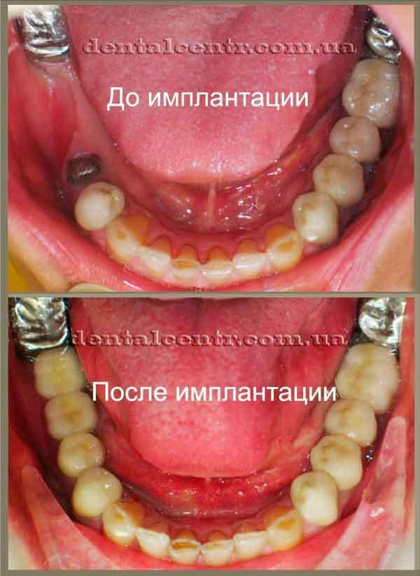 Фотография до и после имлантации зубов