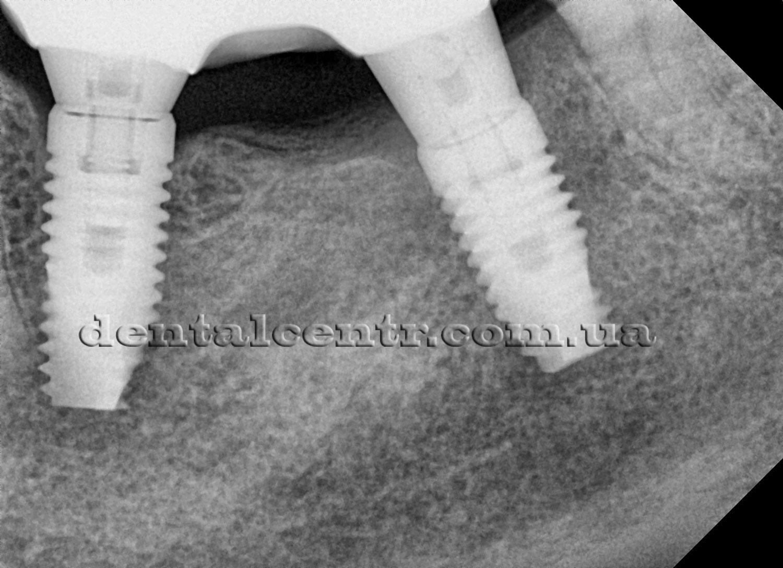мостовидная конструкция на три зуба