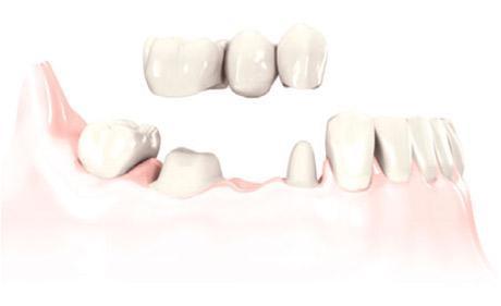 рисунок зубного моста