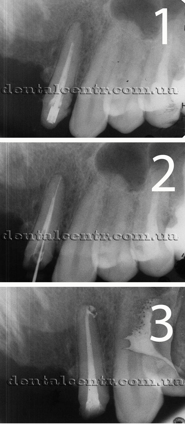 Три рентгенограммы зуба