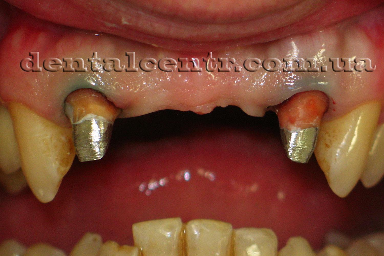 зубной ряд подготовленный к протезированию