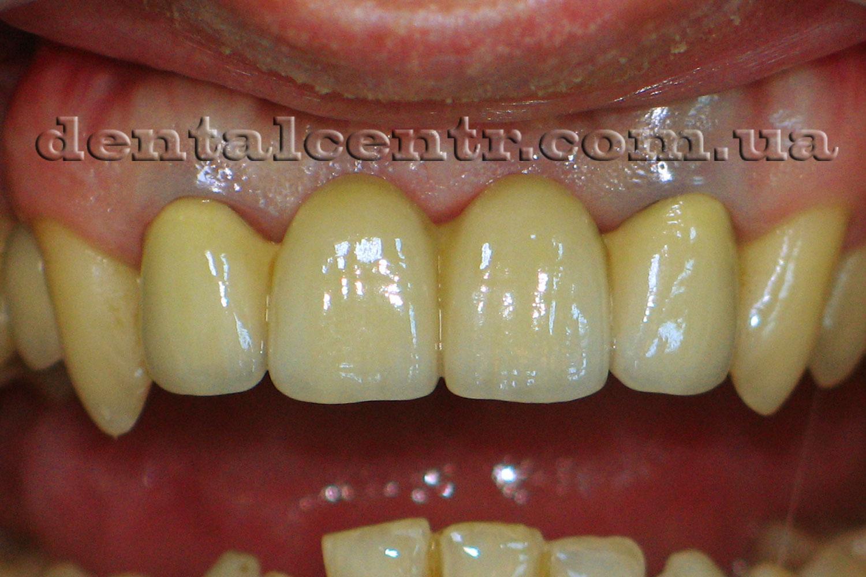 верхний зубной ряд с мостом