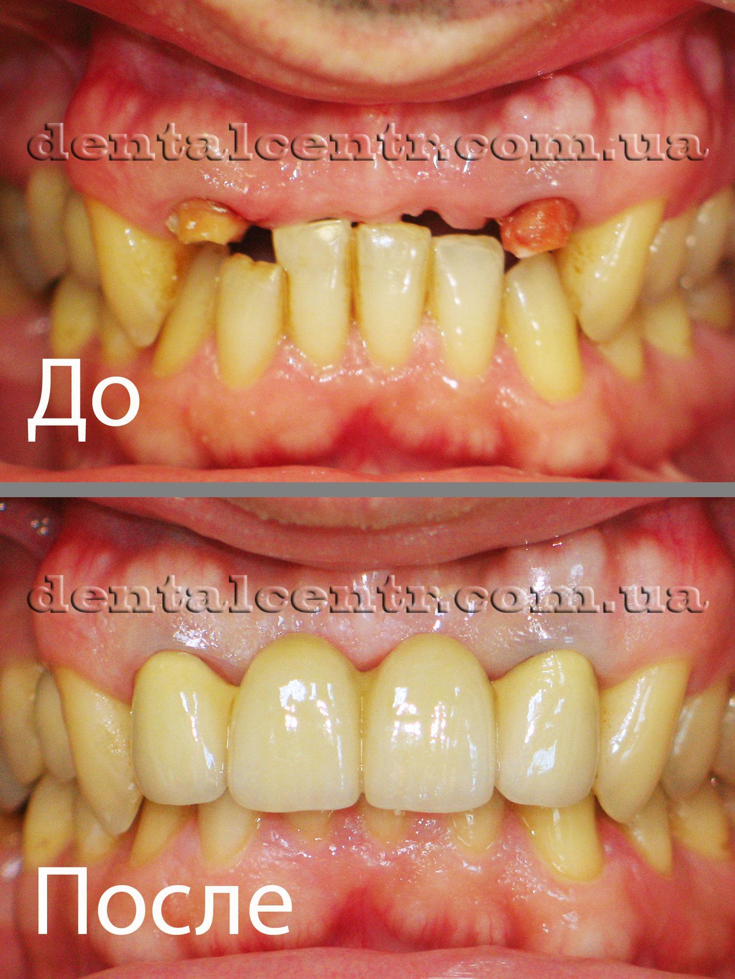состояние зубов пациента