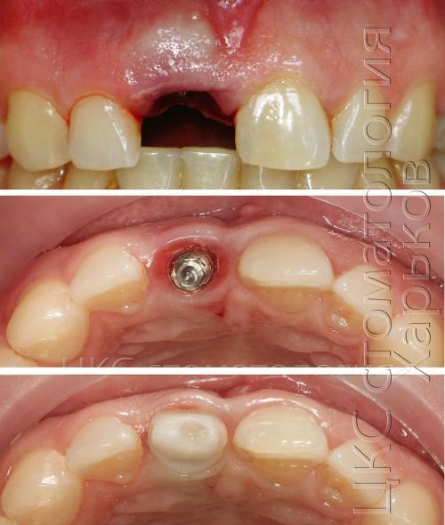 Фото верхней челюсти до и после удаления зуба