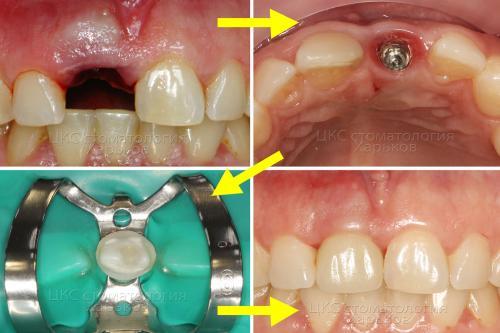 Процесс лечения поломанного зуба