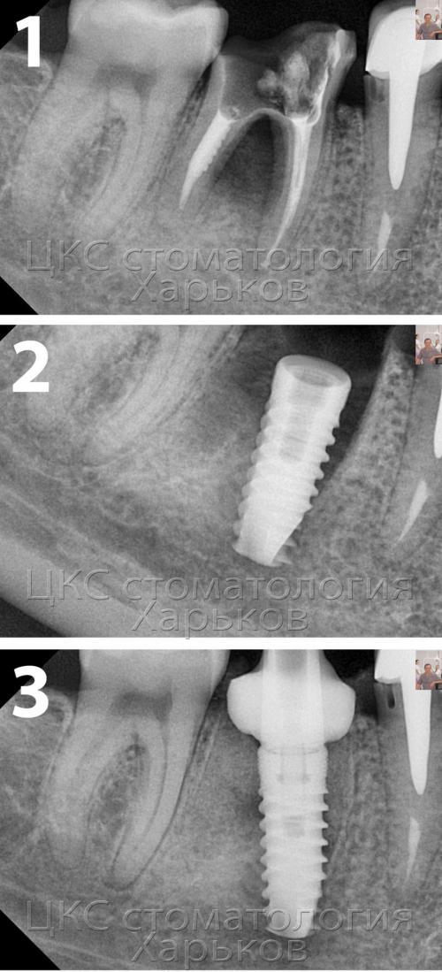Фото и рентгеновский снимок – разрушенный зуб
