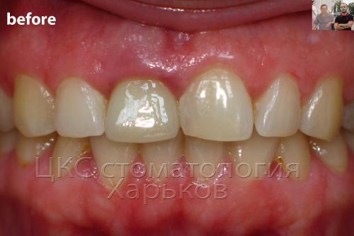 Воспаление десны зуба у пациента