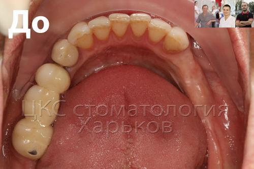 Нижняя челюсть пациента отсутствие зубов нижнего ряда