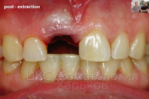 Удаление одного зуба