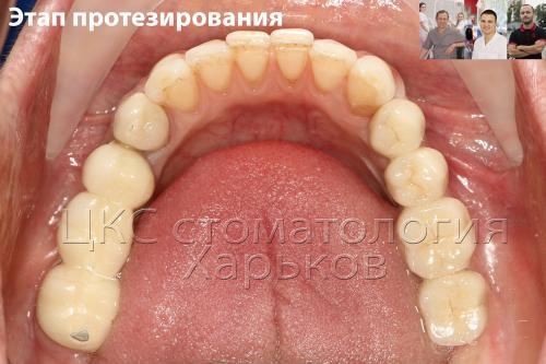 Установка три искусственных зуба импланта