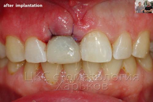 Экспресс имплантация переднего зуба