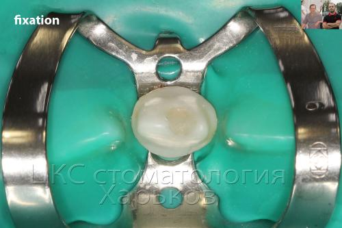 Процесс фиксации коронки из диоксида циркония