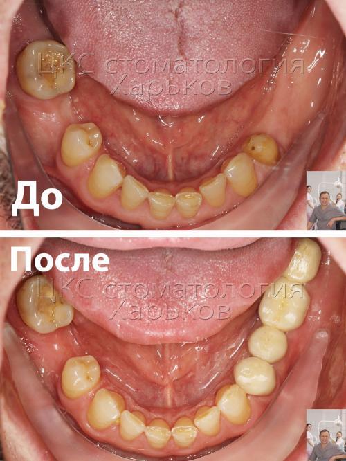 Нижний зубной ряд до и после лечения