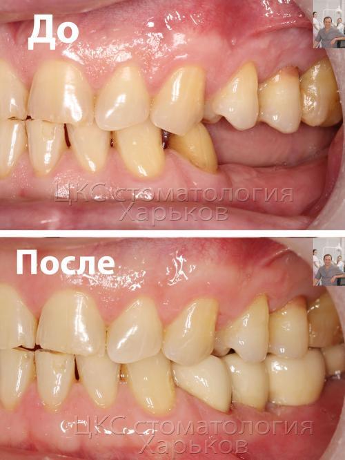 Сравнение зубов до и после протезирования