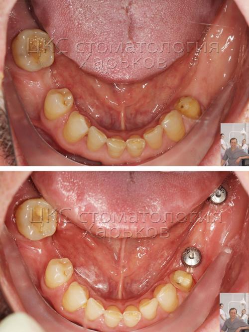 Ротовая полость пациента – до и после протезирования