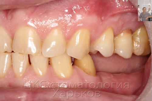 Отсутствие дальних зубов – нижний зубной ряд