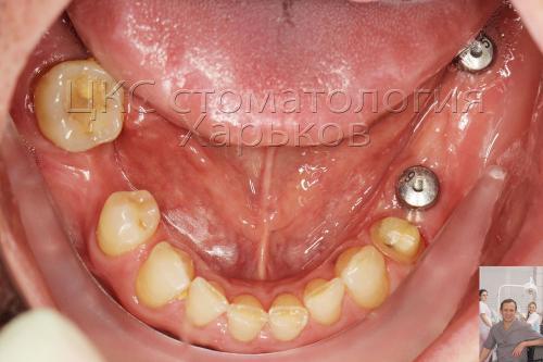 Результат установки зубных имплантатов, формирование мягких тканей десны