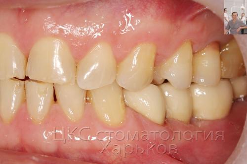 Вид зубов после завершения протезирования