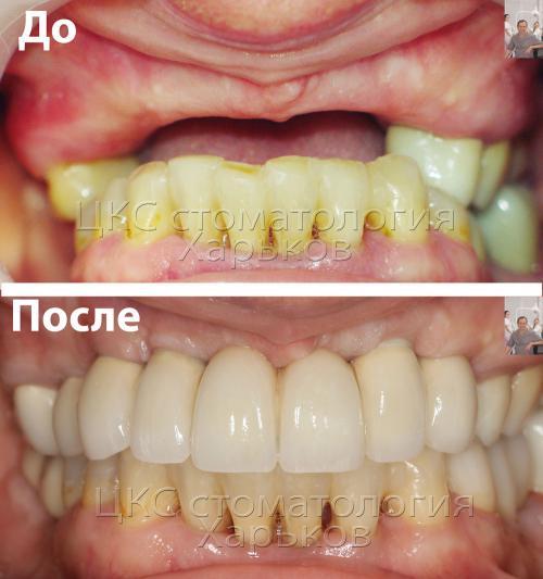 Верхний зубной ряд – до и после имплантации зубов