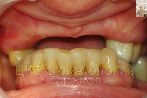 Отсутствие верхних передних зубов
