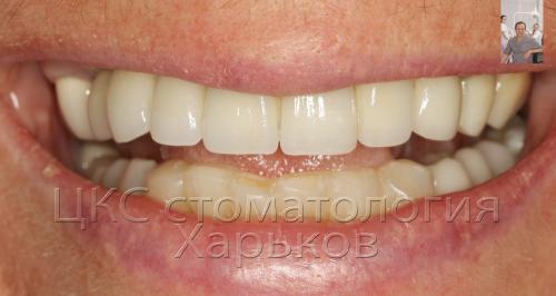 Итог лечения, имплантации зубов