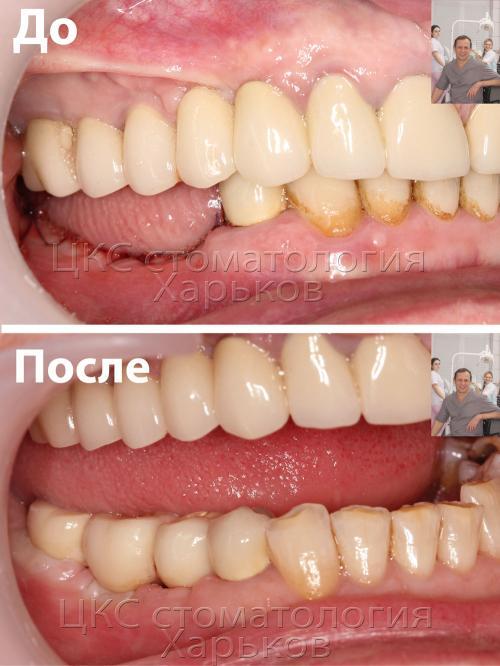 Фотография до и после имплантации