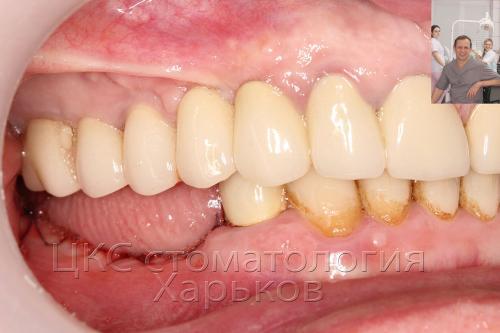 Фотография с отсутствующими зубами