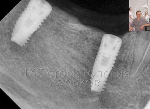 Снимок нижней челюсти – с установленными имплантами