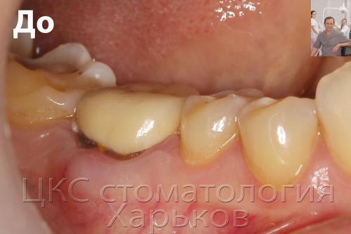 Разрушенный зуб требующий удаления