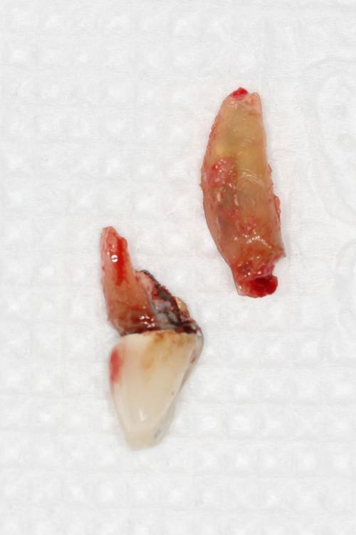 Разрушенный зуб удален