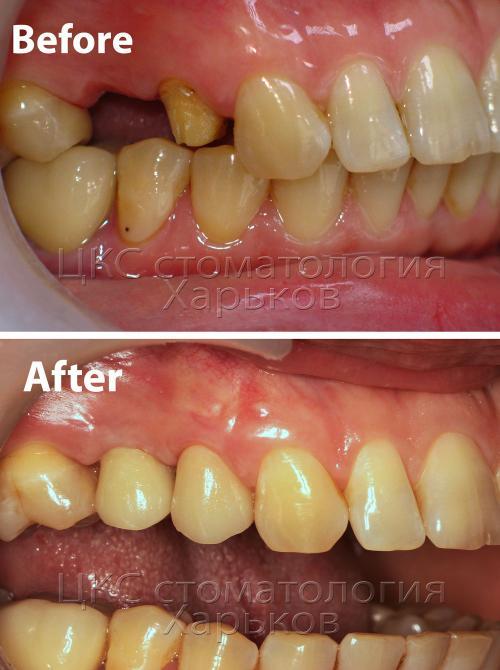 Верхняя челюсть до и после лечения