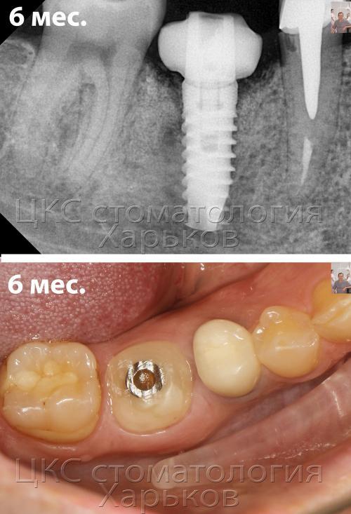 Рентгенограмма и фото зубной челюсти после 6 месяцев