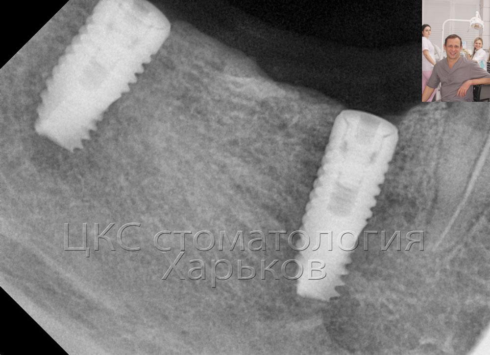 Рентгенограмма через 3 месяца качественная интеграция
