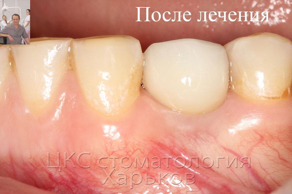 Чем можно полоскать зуб после удаления в  935
