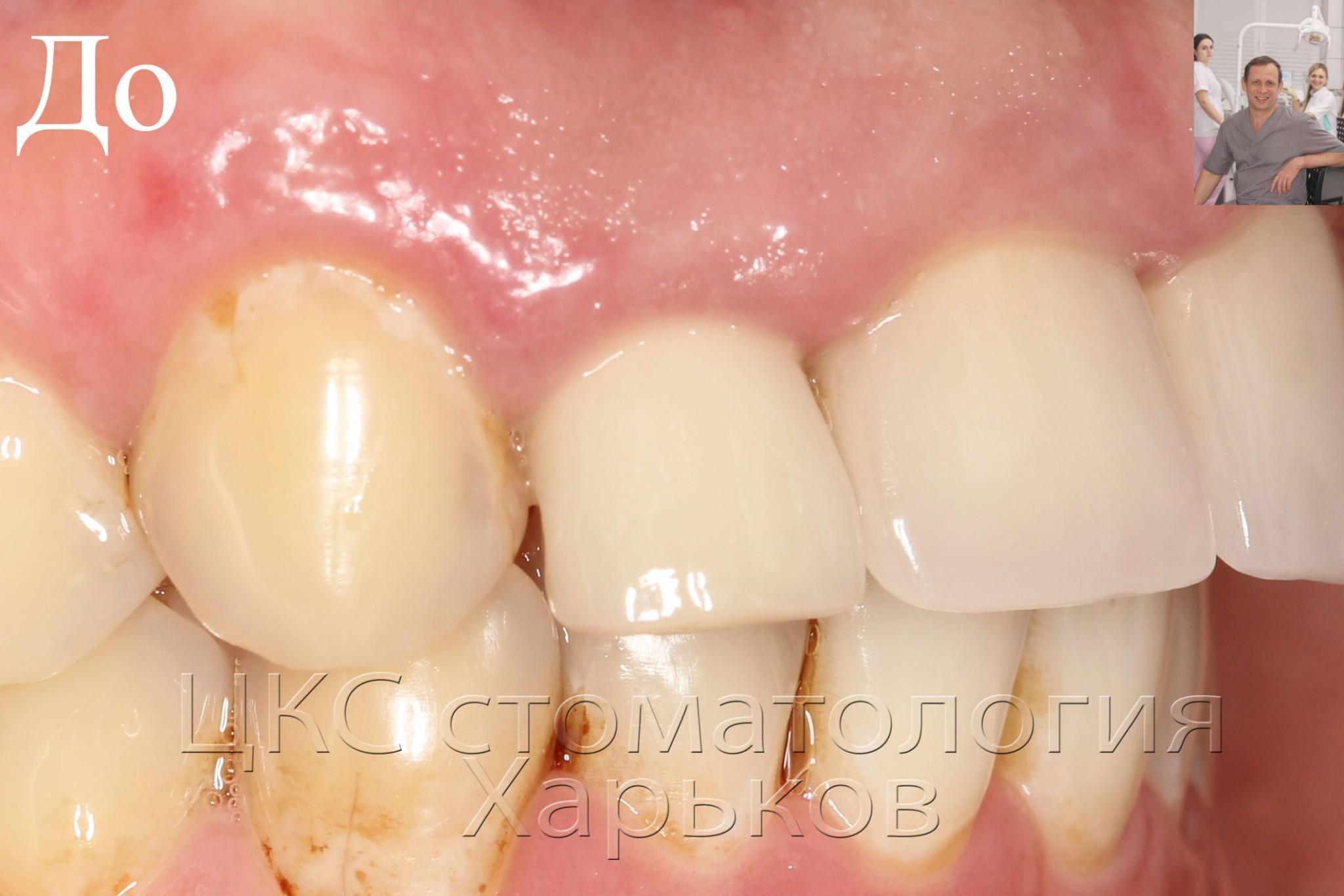 Фото зуба с воспалением, ситуация до зубной имплантации