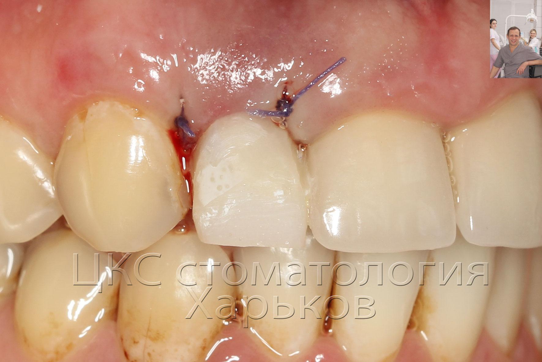 Временная коронка изготовлена сразу после установки зубного имплантата
